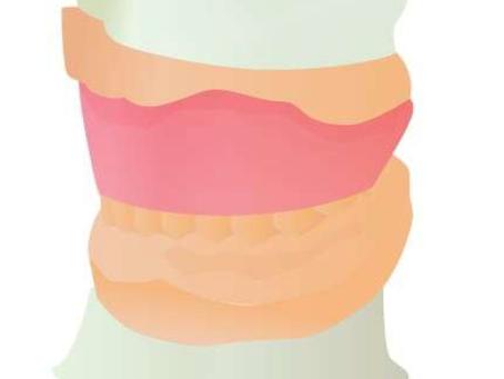 Q&A~入れ歯の作り方~