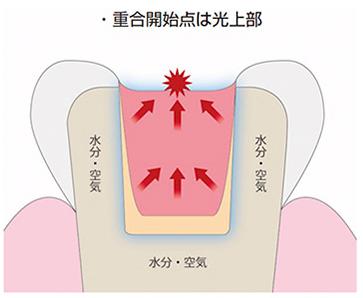 【歯科医師向け】重合収縮のコントロールについて【1級窩洞編】
