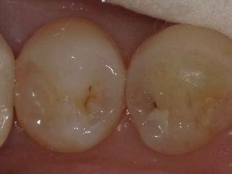 右下奥歯を纏めて治療。遠方からの通院。