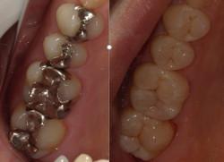 一日で白い歯へ