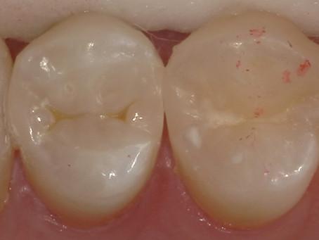 歯科医師の方の虫歯治療。