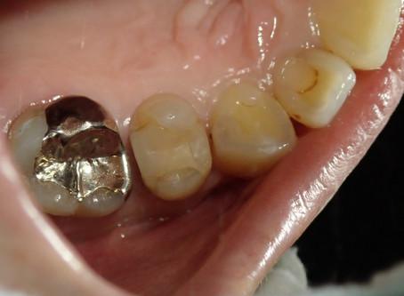 犬歯と奥歯の白い詰め物