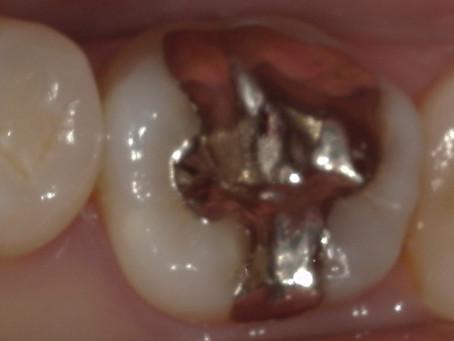 他院勤務中の歯科衛生士さんの治療を行いました。
