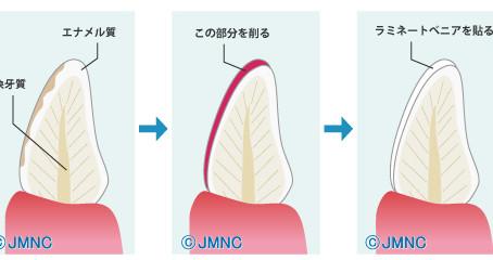 前歯のダイレクトベニア