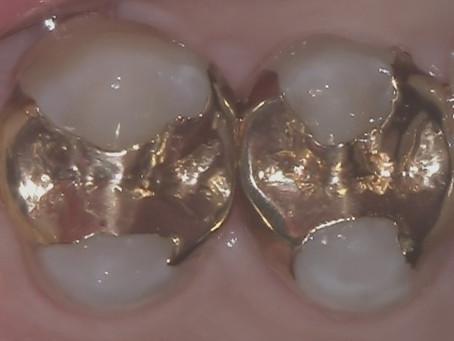 右上小さい奥歯の白い詰め物