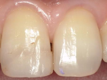 前歯が折れてしまったケース。