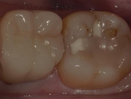 遠方より虫歯の治療で通院された方を一日で治療しました。