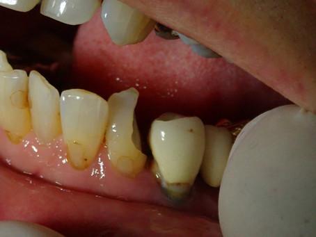 下顎前歯ダイレクトボンディング