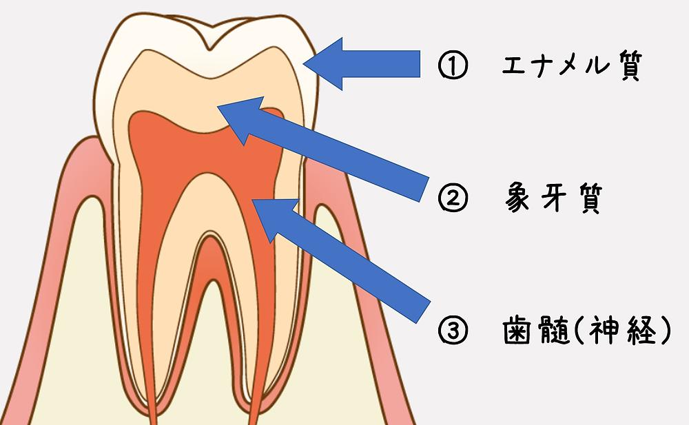 歯 が 痛く て 寝れ ない