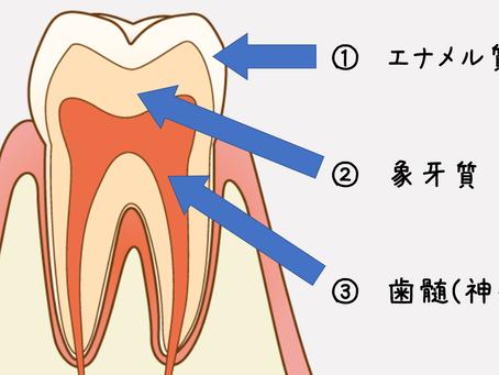 Q&A~今まで痛くなかった歯を治療したことで痛みが出てしまうのか~