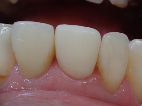 仮歯へのこだわり。その2