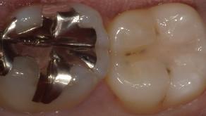 小さな虫歯ほど自費がおすすめ。