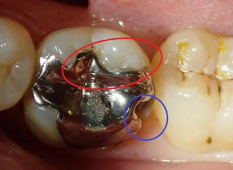 奥歯の白い詰め物