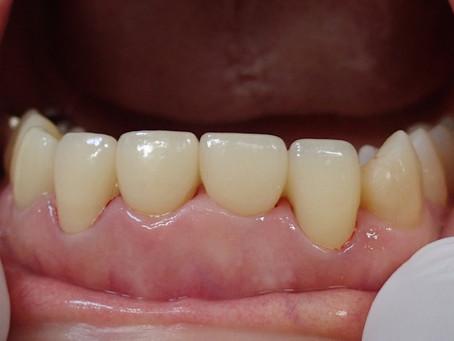 上の前歯の自費診療(セラミック)