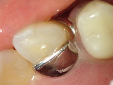 右上犬歯の白い詰め物