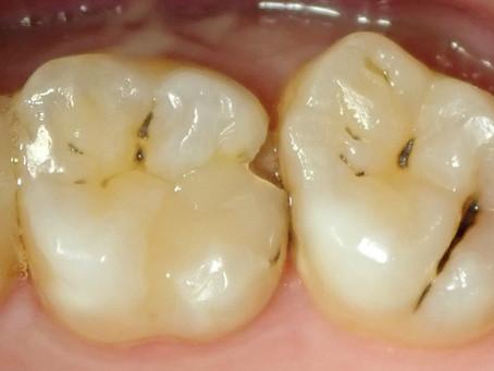 右上奥歯の治療