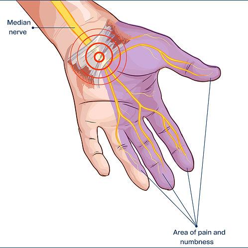 Neuropathies, neurodynamique et syndromes canalaires