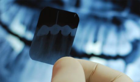 Rx. dentales panorámicas para afiliados atendidos en la seccional/CAP