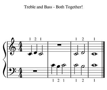 Treble and bass.JPG