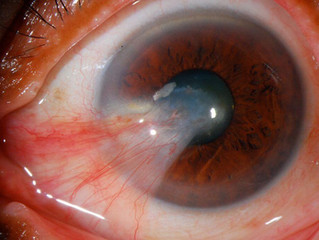 In Office Pterygium Surgery
