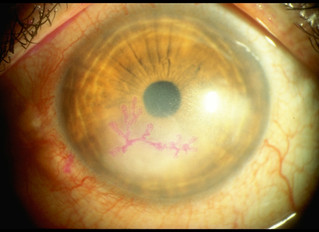 I have Herpes in my eye?--Herpetic keratitis