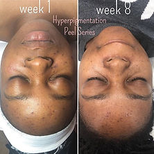 8 week transformation! Hyperpigmentation