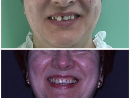 Antes y después de un tratamiento de ortodoncia