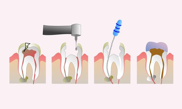 endodoncia.jpg