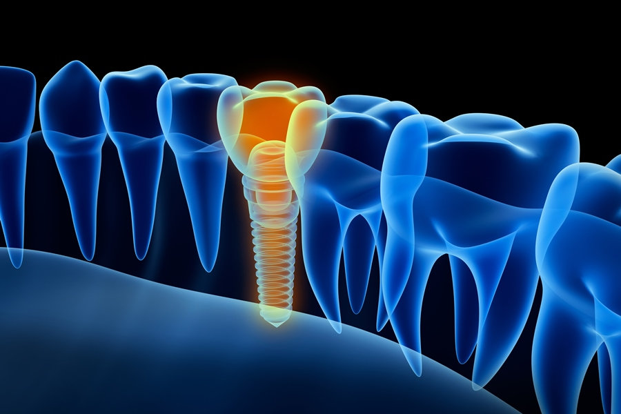 Implantes dentales Astorga