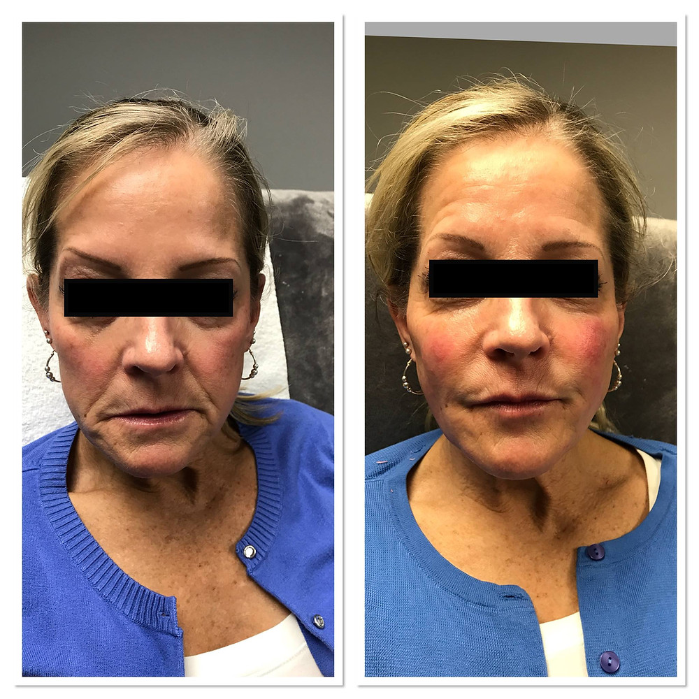 Before & After Restylane Defyne lip injections and Sculptra face treatment