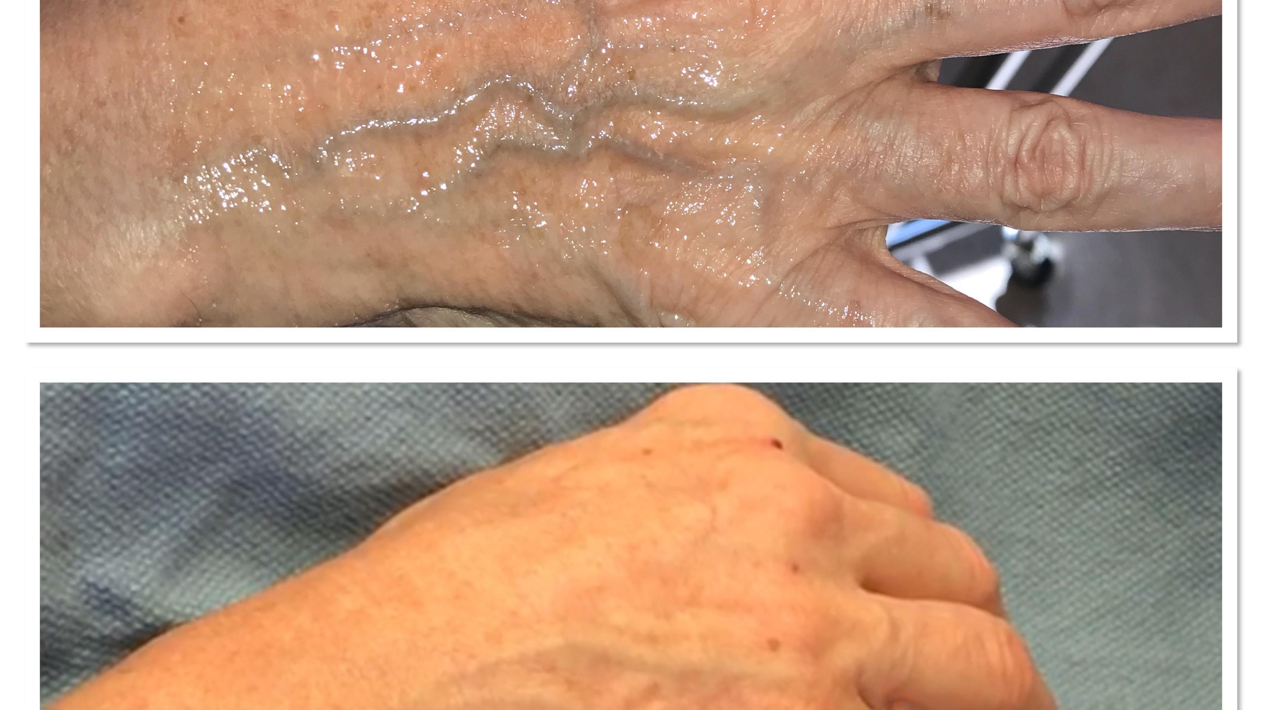 Before & After Hand Filler