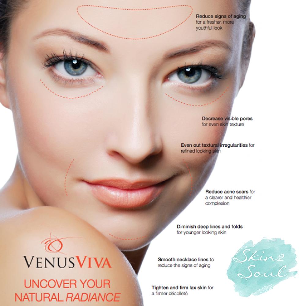 Venus Viva Treatment Reduce Aging Decrease Pores Smooth Irregularities Diminish Lines Folds Reduce Scars