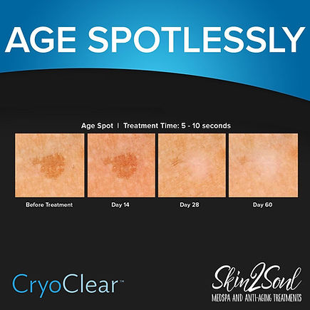 CryoClear age spot treament progression before an after