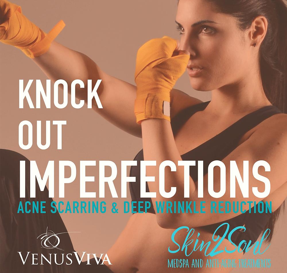 Venus Viva Skin Treatment Imperfections Scarring Wrinkle Reduction