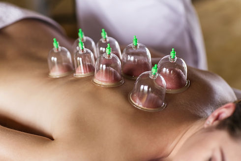 Woman laying on chest with cupping treat