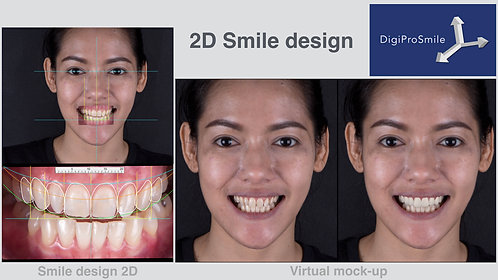 2D Smile design