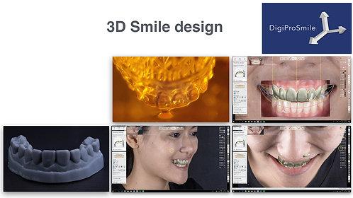 3D Smile design