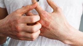 L'alimentation et la dermatite atopique (eczéma)
