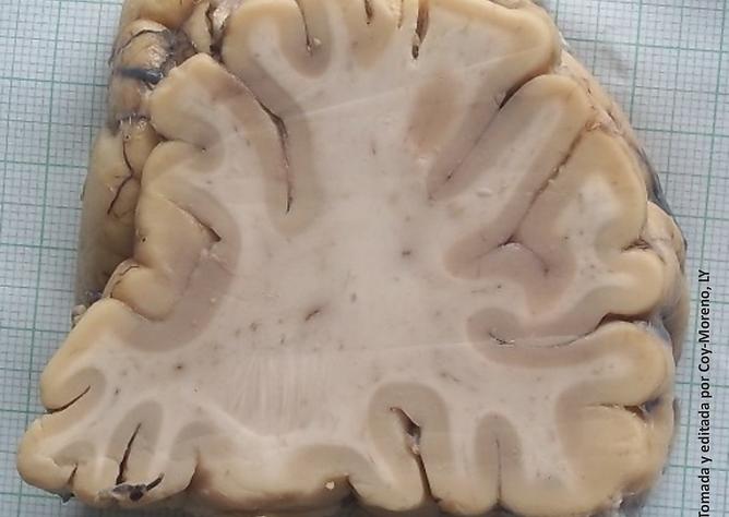 atlassistemanervioso | Anatomía macroscópica del SN