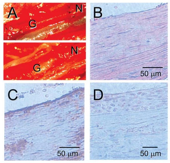 Tissue engineering of recellularized small-diameter vascular grafts
