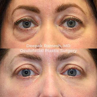 lower eyelid bag surgery blepharoplasty