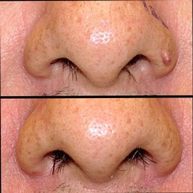 nasal angiofibroma removal with Dr. Deepak Ramesh