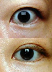 eyelid retraction surgery for thyroid eye disease