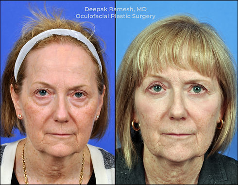 laser skin resurfacing or chemical peel with Dr. Deepak Ramesh