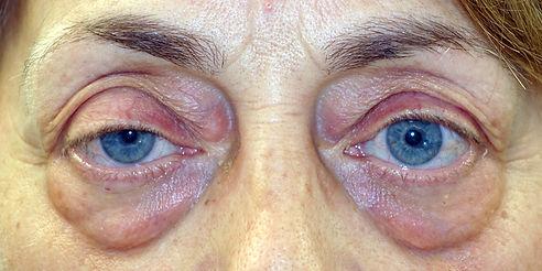 eyelid bags