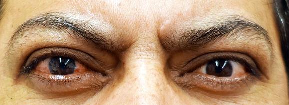 active thyroid eye disease