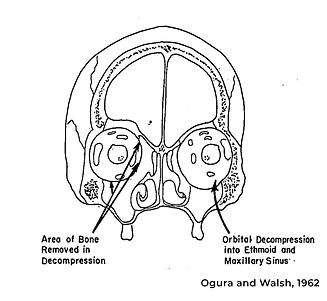 Orbital decompression anatomy