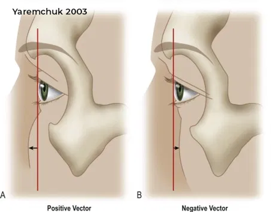 negative and positive vector eyelid and maxilla