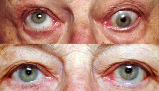 strabismus surgery for double vision after thyroid eye disease