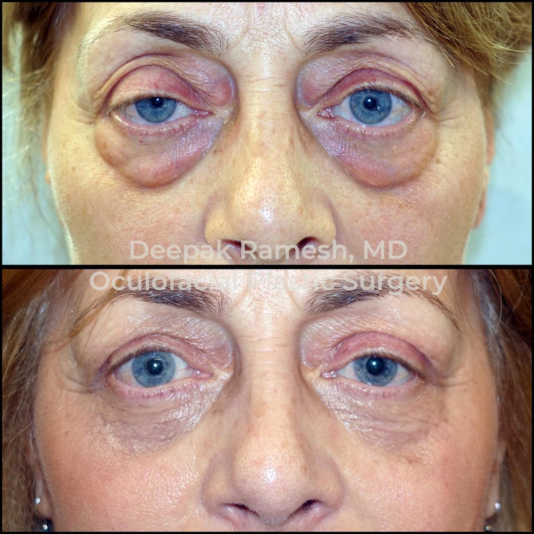 Upper & Lower Blepharoplasty